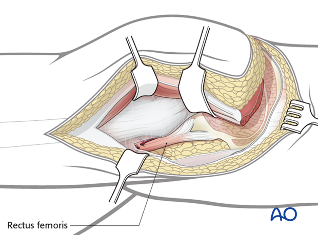 extended iliofemoral approach to the acetabulum