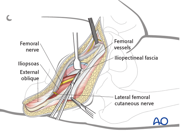 ilioinguinal approach to the acetabulum