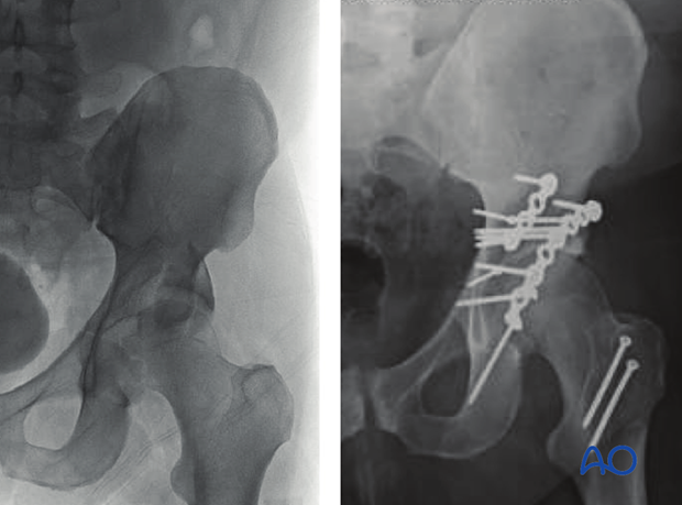 orif through trochanter osteotomy extension