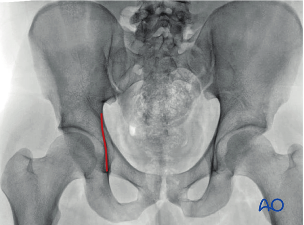 radiology of the intact acetabulum