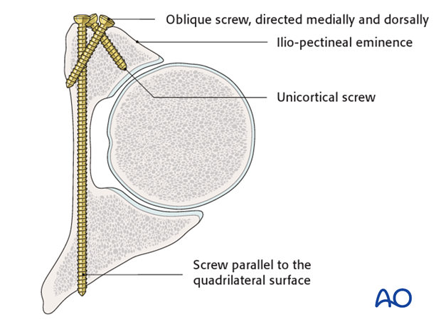 general stabilization principles and screw directions