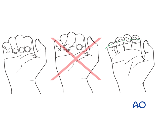 Check the alignment and rotational correction by moving the finger through a range of motion.
