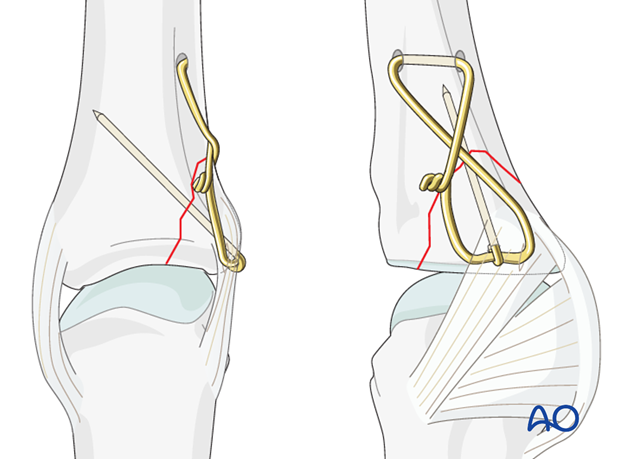 Avulsion fracture of proximal phalanx MCP joint – Tension-band wiring