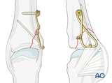 proximal articular avulsion