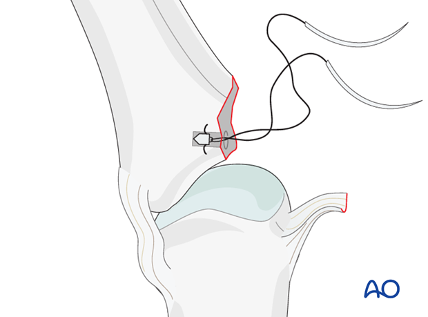 Avulsion fracture of proximal phalanx MCP joint – Collateral ligament reattachment