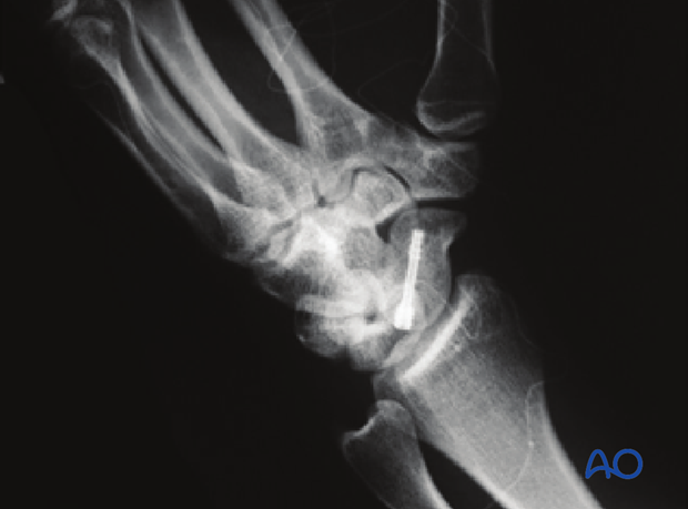 Scaphoid Proximal pole fractures Screw fixation