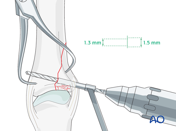 Proximal phalanx - MCP joint - vertical shearing fracture - Lag screw fixation