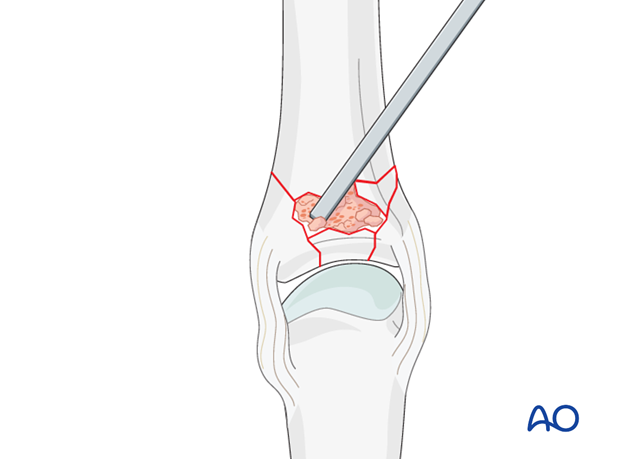Multifragmentary proximal phalanx MCP joint fracture – plate fixation