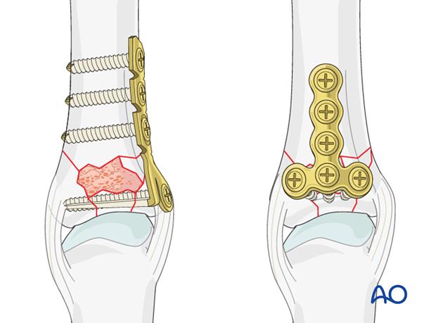 Two types of plate are available for treatment of this fracture: the minicondylar plate and the T- (adaption) plate.