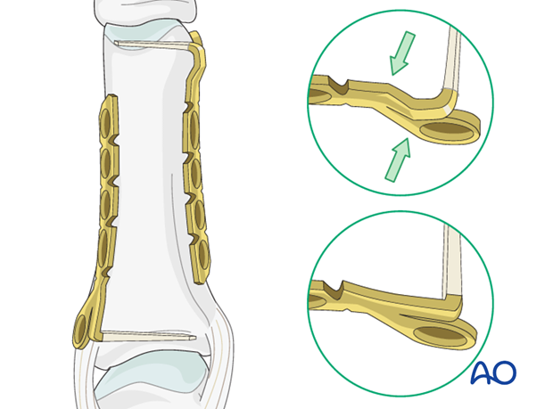 Metaphyseal simple oblique fracture of proximal phalanx – Minicondylar compression plate fixation