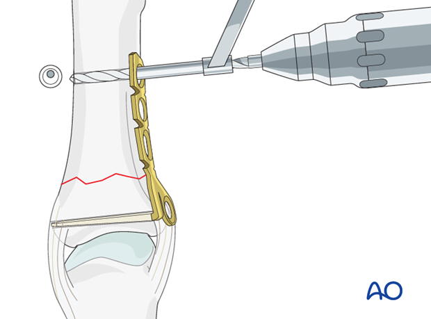 Transverse fracture of the base of the proximal phalanx – Minicondylar plate fixation