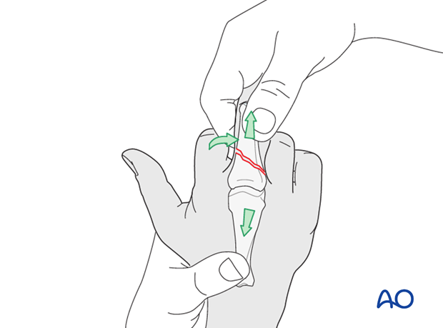 Metaphyseal simple oblique fracture of proximal phalanx – Plate fixation