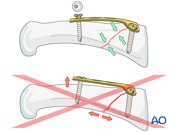 Metaphyseal simple oblique fracture of proximal phalanx – T-plate fixation
