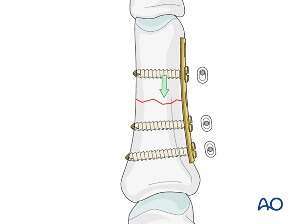 Simple transverse fracture of proximal phalanx – Compression plate fixation