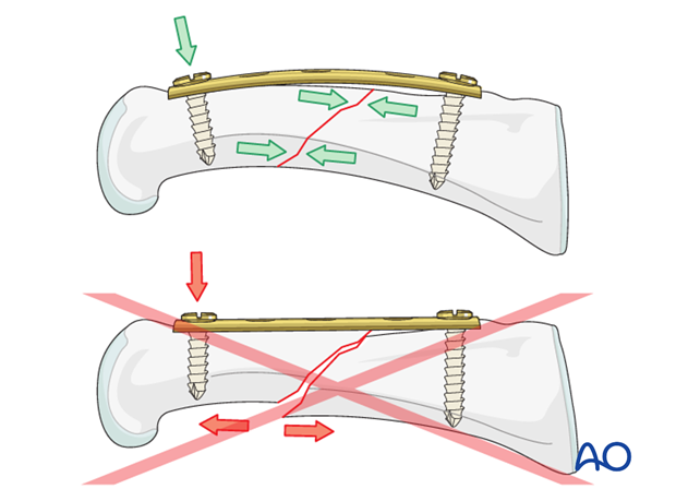 Short oblique shaft fractures of the proximal phalanx – Compression plate fixation