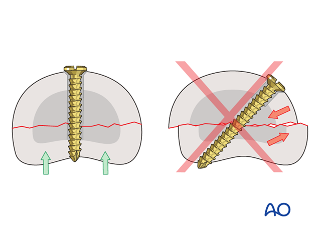 If the screws are not perpendicular to the fracture plane, screw tightening may lead to fracture displacement.