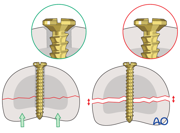 Avulsion fracture of proximal phalanx MCP joint – Screw fixation