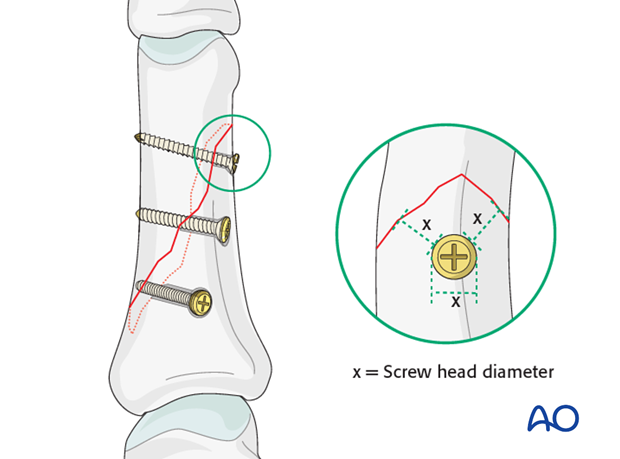 Long oblique and spiral shaft fractures of the proximal phalanx – Lag screw fixation