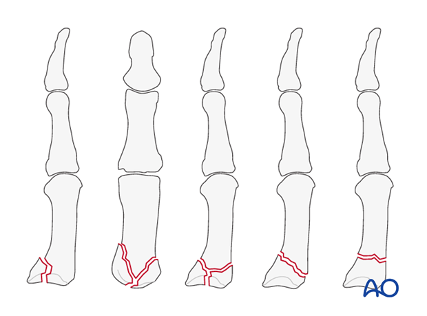 This approach is indicated for intraarticular fractures of the first carpo-metacarpal joint, such as the Bennett, ...