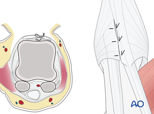 Repair the capsulotomy with fine, interrupted mattress sutures. The separated tendons of EPL and EPB are approximated with ...