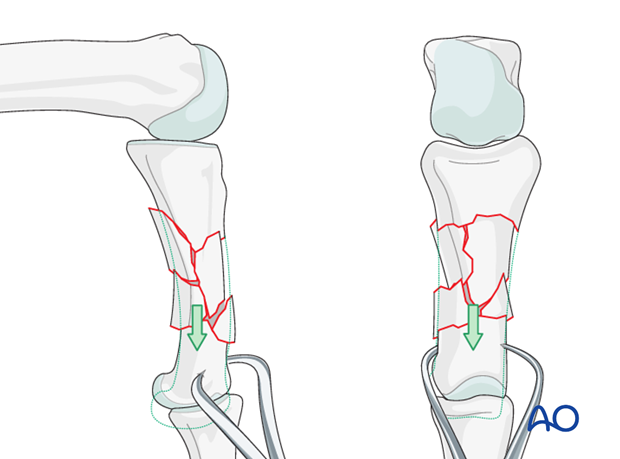 Comminuted fractures of the proximal phalanx – Bridge plate fixation