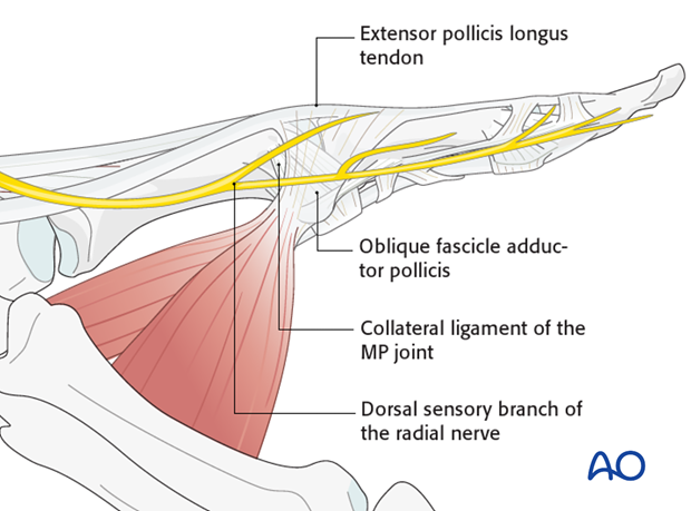 On the ulnar aspect of the metacarpophalangeal (MCP) joint of the thumb are seen the transverse and oblique fibers of the ...