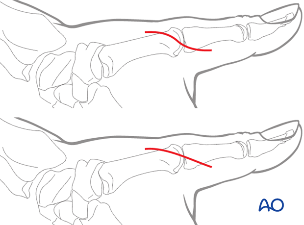 An incision starting dorsally, about 1 cm proximal to the MCP joint is extended in a palmar direction around the ulnar ...