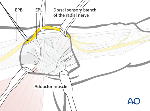 Identify and protect divisions of the dorsal sensory branch of the radial nerve, using a vessel loop.