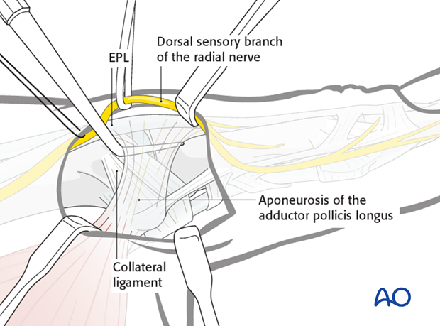 A dental pick is inserted deep to the aponeurosis of the adductor pollicis longus (APL) and between it and the ulnar ...