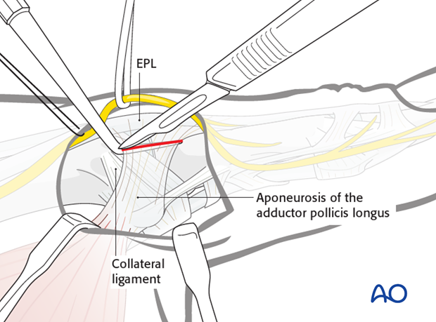Make a longitudinal incision to divide the adductor aponeurosis close to its insertion into the EPL tendon.