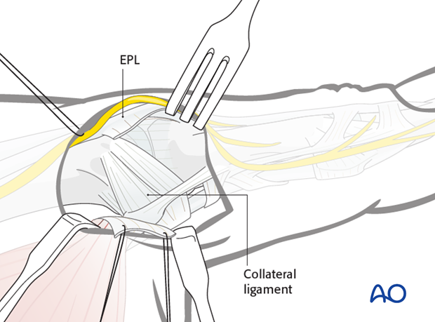 Retract the aponeurosis in a palmar direction using fine sutures, ...
