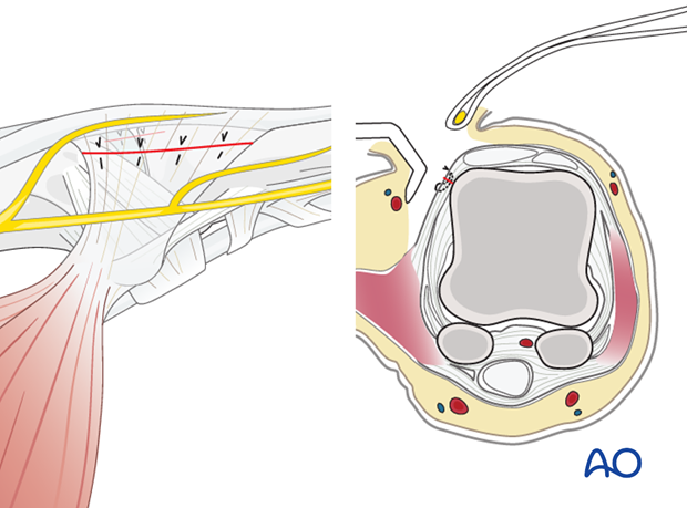 Close the capsule and then reattach the adductor aponeurosis using fine interrupted mattress sutures.
