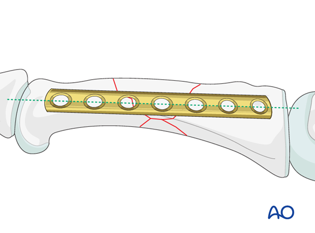 Wedge fractures of the proximal phalanx - Bridge plate fixation