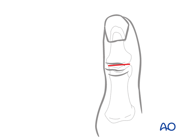 An alternative incision, designed to reduce potential soft-tissue trauma, is a simple transverse incision, which will ...