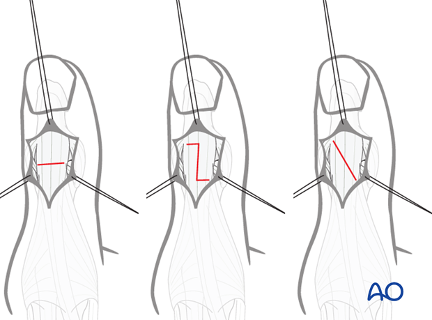 Divide the distal tendon of the EPL using either a transverse tenotomy, a step cut, or a long oblique cut. The step cut and ...
