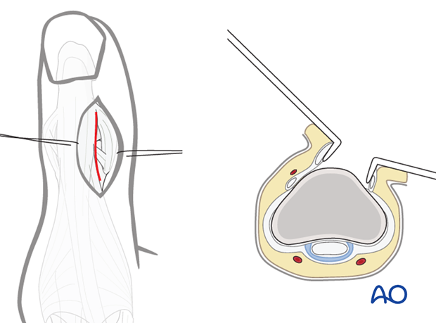 A straight dorsoradial, or dorsoulnar, skin incision will allow retraction of the distal tendon of EPL without having to ...