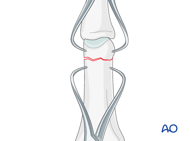 Reduction can be achieved by traction and flexion exerted by the surgeon, or by two pointed reduction forceps.