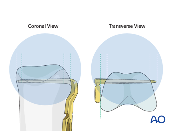 Transverse head fracture of the proximal phalanx – Minicondylar compression plate fixation