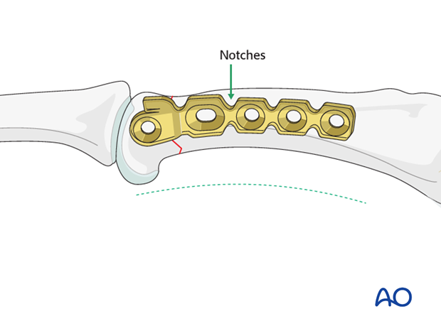Short oblique head fracture of the proximal phalanx – Lag screw with protection plate