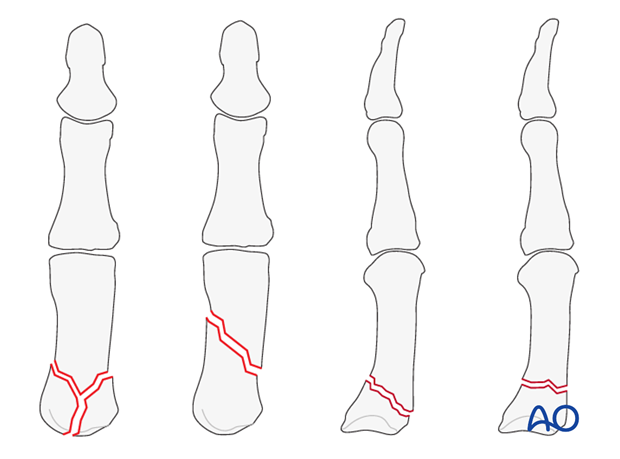 This approach is indicated for extraarticular fractures of the first metacarpal, and for periarticular fractures of the ...