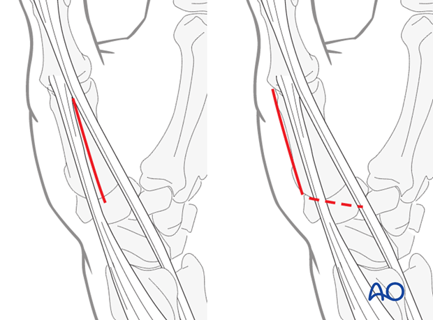 Make a straight skin incision over the interval between EPL and EPB throughout the length of the first metacarpal.