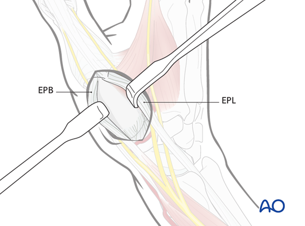 Incise the fascia between the EPL and EPB tendons and retract them to either side.