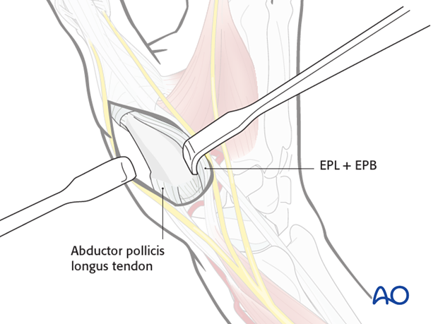 If the more radial skin incision has been chosen, incise the fascia on the radial side of EPB, and retract both tendons in ...