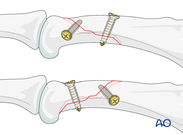 Long oblique head fracture of the proximal phalanx – Lag screw fixation