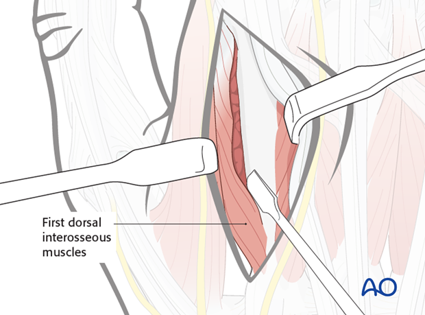 The extensor tendons can be retracted to the ulnar side, together with the surrounding loose connective tissue.