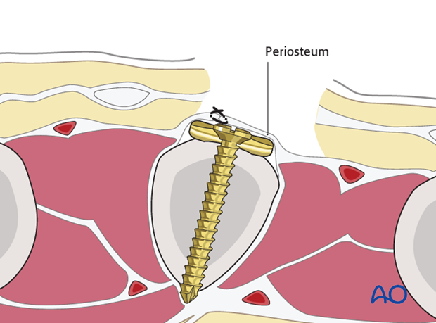 Cover the implant with the periosteum, as far as possible; this helps to minimize contact between the extensor tendons and ...