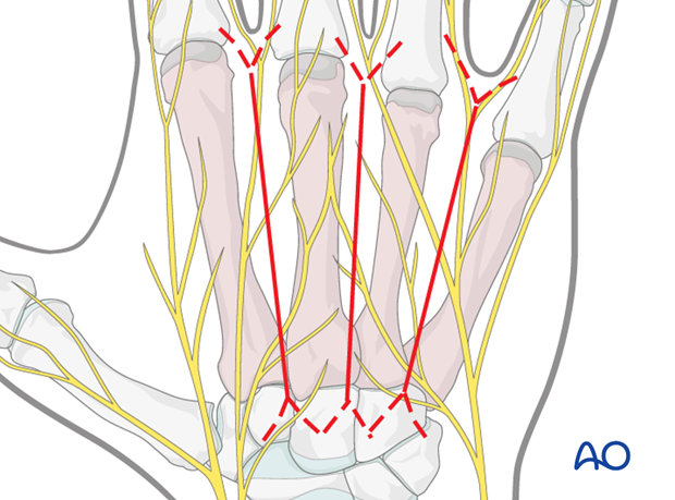 Make a straight longitudinal skin incision in the interval between adjacent metacarpal bones, not directly over the extensor ...
