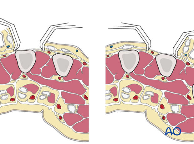 Adjacent metacarpals can be approached with a single skin incision.