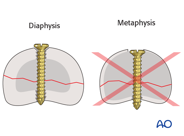 Do not countersink the screws in the metaphysis as its cortex is very thin.