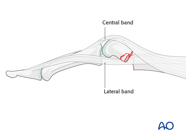 Comminuted fracture of the proximial phalanx meetaphysis – minicondylar bridge plate fixation